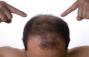 DHI saç ekim yöntemi