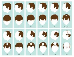 FUT Saç Ekimi
