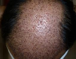 ekilmiş saç