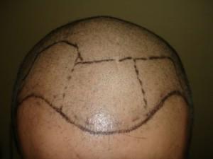 fue saç ekimi öncesi