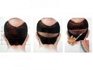 fut tekniği saç ekimi