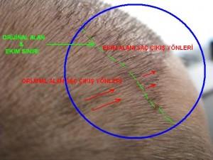 saç ekimi çesitleri yönleri