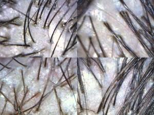 saç analizi