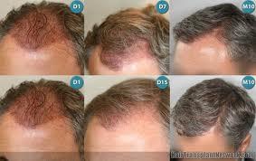 saç ekim işlemi aşamaları