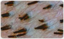 saç ekimi ameliyatı