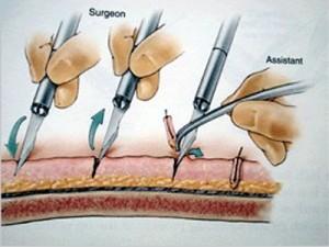 saç ekimi operasyon ameliyat