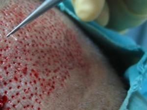 saç ekimi plastik cerrahi