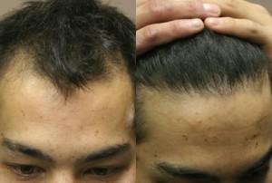 saç ekimi sonuç