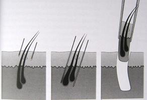 son teknoloji saç ekimi