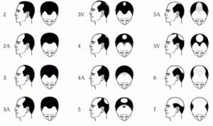 norwood scale saç dökülmesi