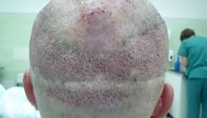 saç ekim yara izi