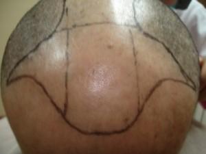 saç ekimi işlem