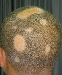 saç kıran hastalığı